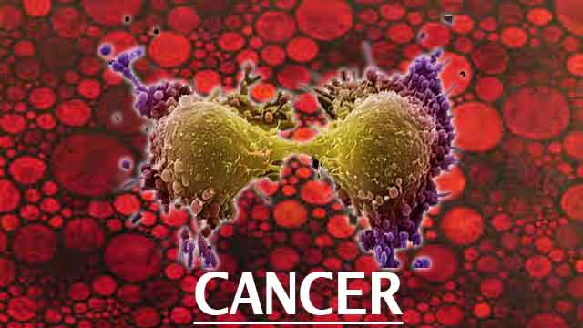 alkaline water cancer