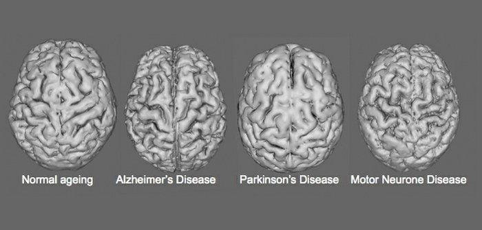 how alkaline water can benefit brain disease
