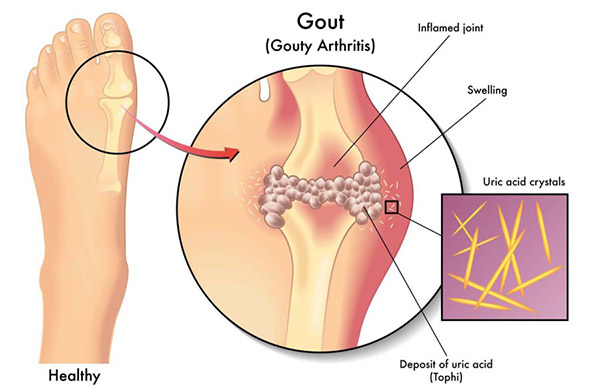 Alkaline Water Benefits for Gout